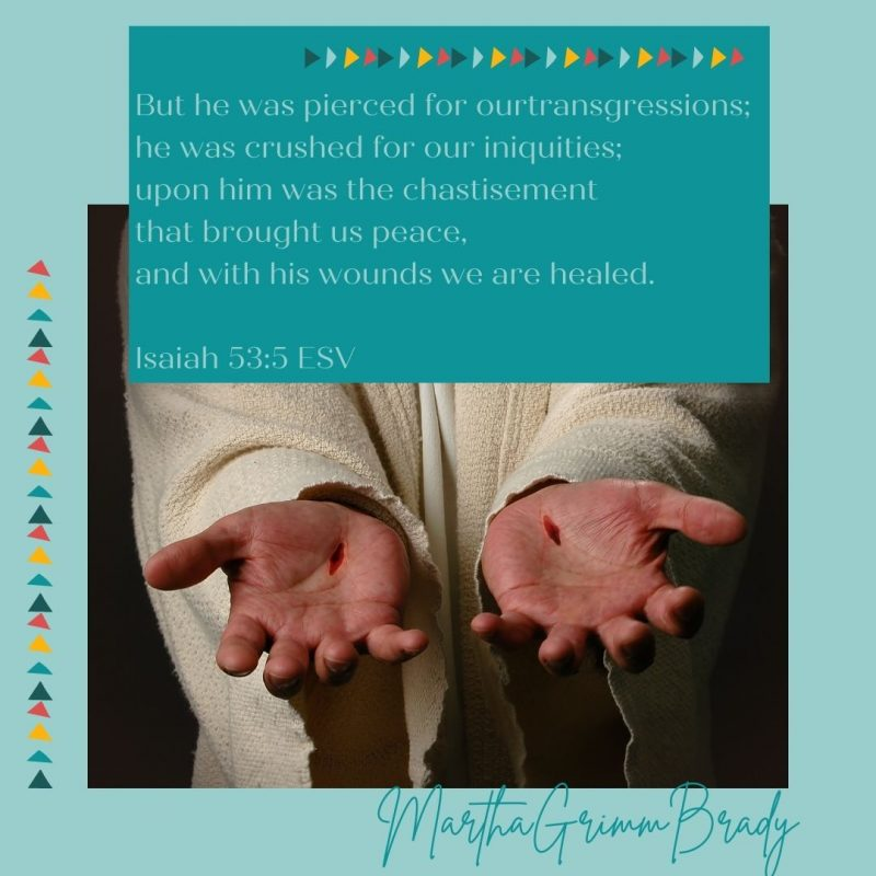 Most important scars? Those Jesus carries for me that are able to provide forgiveness and life for me as a free gift from Him. Free to me but not cheap for Him. #Jesusscarsbringhealing #Hisscarsgavemelife #christarose