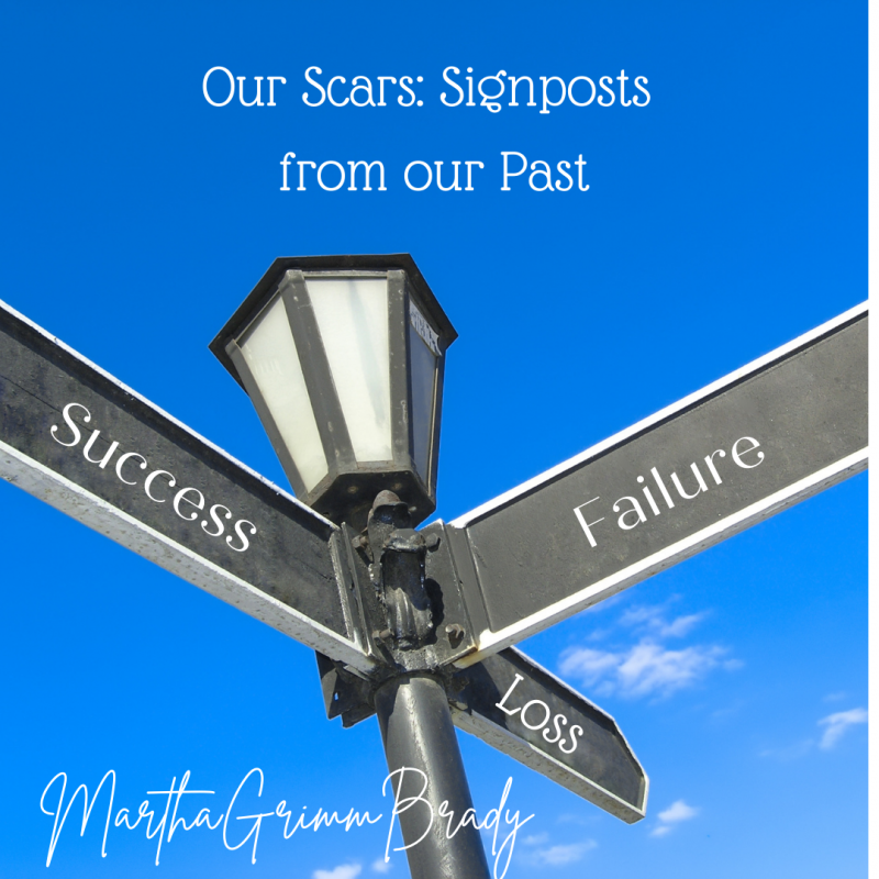 Scars can be signposts from your past. They remind you of hard times when you learned about life, yourself, God, and a bit more of how they fit together. #scars #signposts #marthagrimmbrady