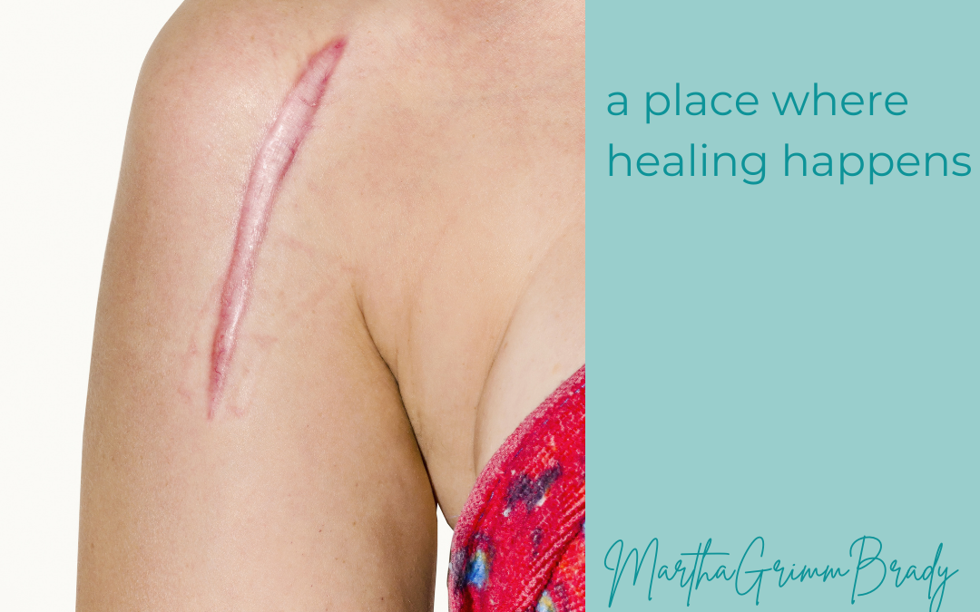 SCARS: A PLACE WHERE HEALING HAPPENS…