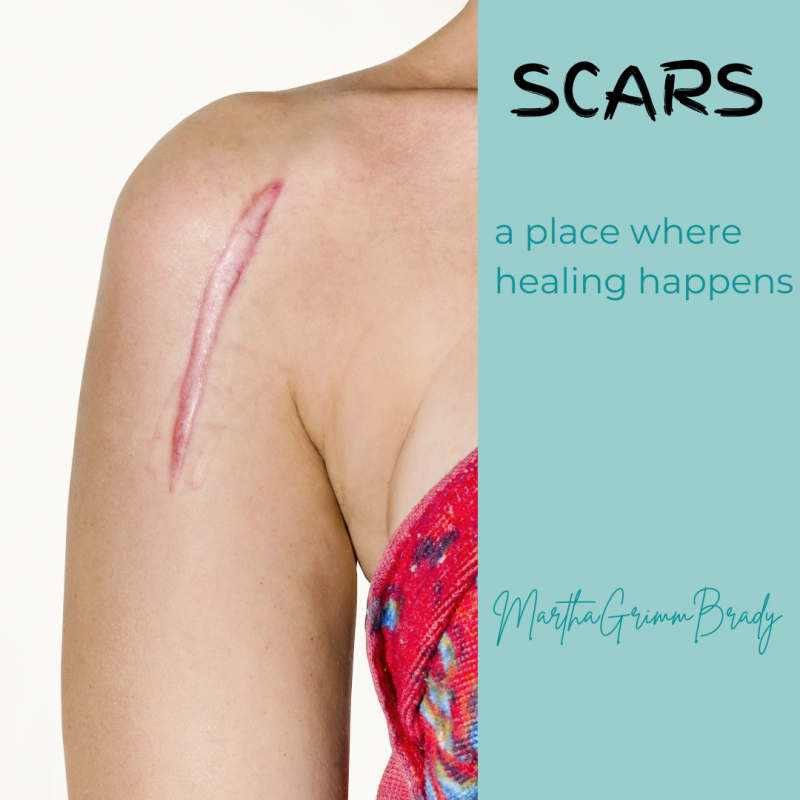 A scar is not a bad thing. In fact, it is a sign of healing of a wound. This series on scars is designed to remind us that those scars we may see as awful are marks that show healing has and is taking place. #scarring #scarsonmyheart